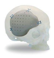 cranio2