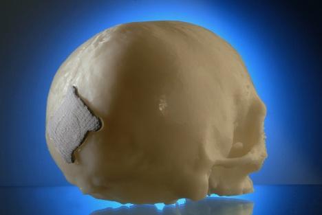 laser melt bone implant