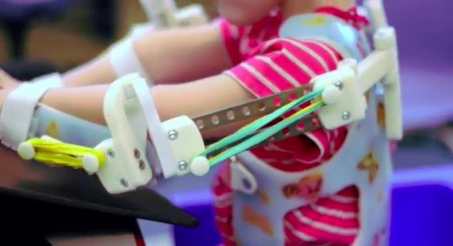 MagicArms 3D printed exoskeleton